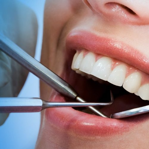 How Does A Dentist Fix Misaligned, Chipped, or Cracked Teeth With Dental Contouring and Bonding?