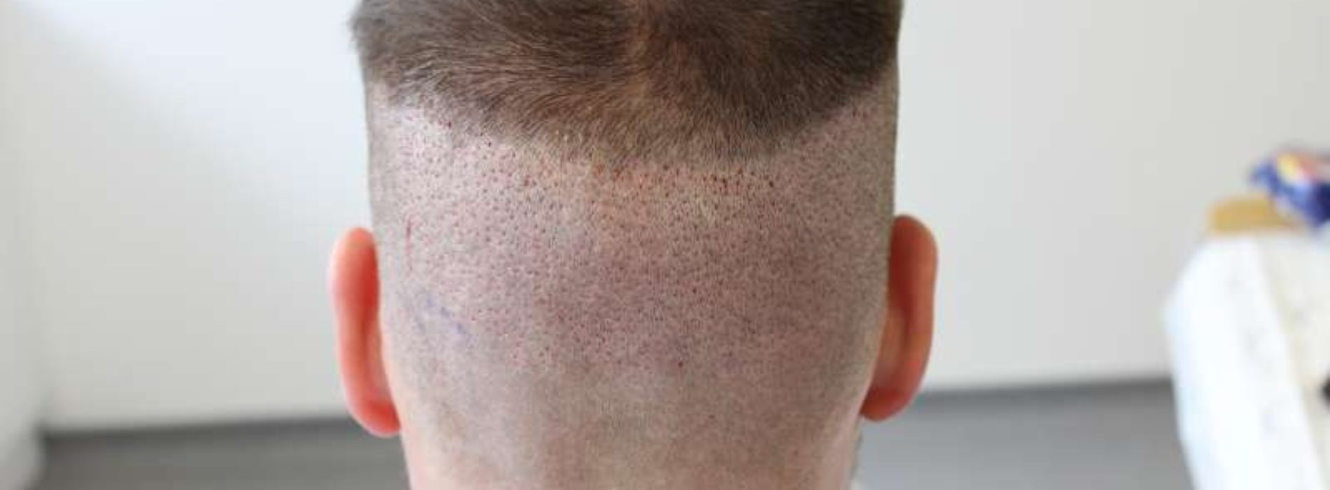 How to Preserve the Safe Donor Area in the Hair Transplants