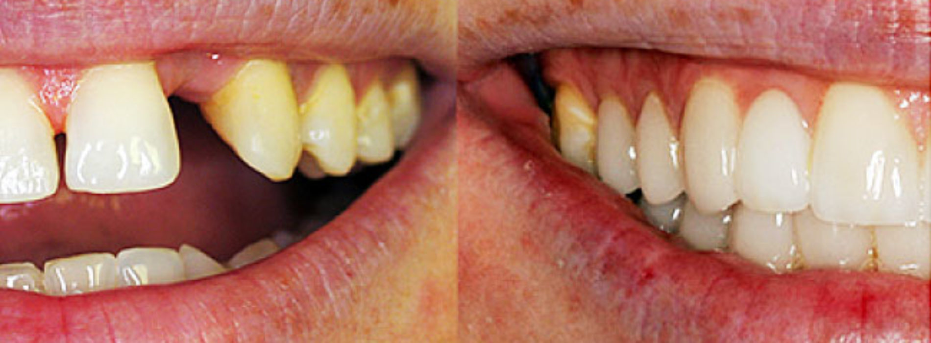 Get the cosmetic dental procedure you need